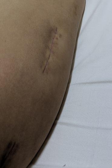 大腿骨転子部骨折の記録